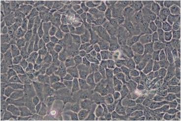 Aus-den-physikalischen-Eigenschaften-der-Mineralkomposite-resultierende-Vorteile-sie-fangen-freie Radikale-Hautalterung-g